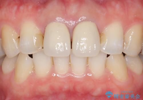 オールセラミッククラウン 前歯の劣化した古い樹脂をセラミックにの治療前