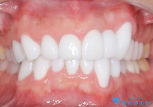 歯並びをきれいにしたい、歯を真っ白にしたい 40代男性の治療後