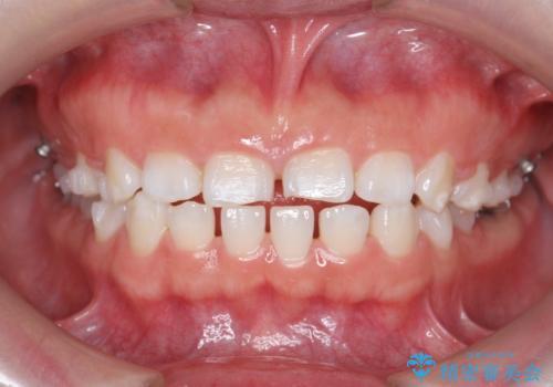 インビザライン 気になるすきっ歯の改善の治療中