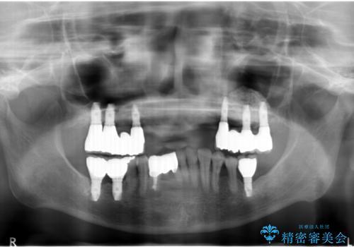 歯周病 インプラントによる咬合機能回復の治療後