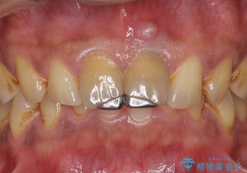 歯ぐきからの出血 膿が出る 前歯根管・セラミック治療の治療前