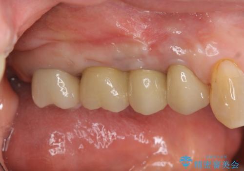 [ 歯牙破折 ]  インプラントによる咬合機能回復の治療後