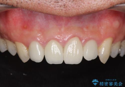 [根管治療・セラミック補綴]  歯ぐきを押すと痛いの症例 治療前