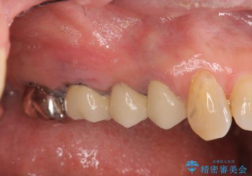 [ 歯牙破折 ]  インプラントによる咬合機能回復の治療前