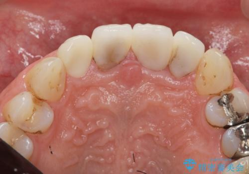[根管治療・セラミック補綴]  歯ぐきを押すと痛いの治療後