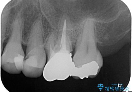発見の難しい虫歯。根管治療から被せもの治療の治療前