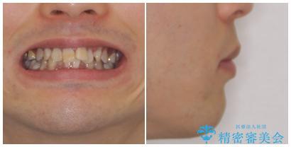 口元の突出感と叢生 ワイヤー装置による抜歯矯正の治療前(顔貌)