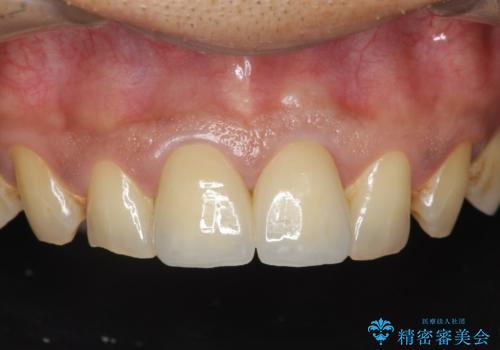 歯ぐきからの出血 膿が出る 前歯根管・セラミック治療の症例 治療後