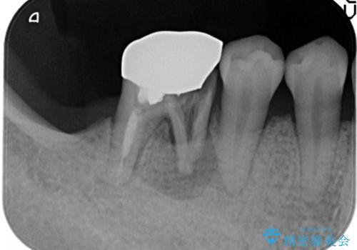 奥歯が痛い。抜歯~奥歯のインプラント の治療前