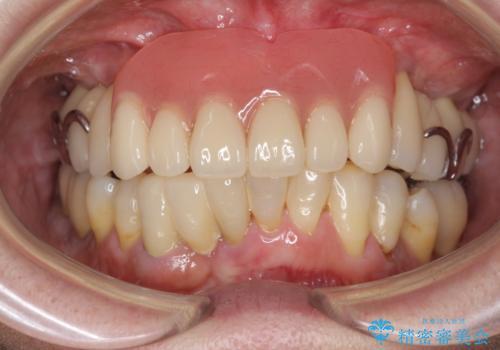 歯周病 インプラントによる咬合機能回復の症例 治療後