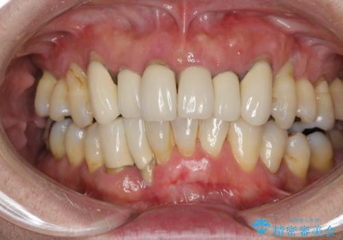 歯周病 インプラントによる咬合機能回復の症例 治療前