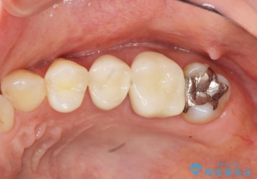 放置し崩壊した歯 セラミック治療による咬合機能回復の治療後