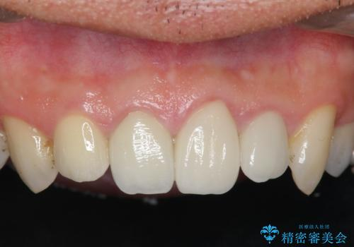 [根管治療・セラミック補綴]  歯ぐきを押すと痛いの症例 治療後
