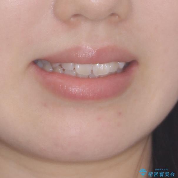 気になる前歯をインビザラインで綺麗にの治療前(顔貌)
