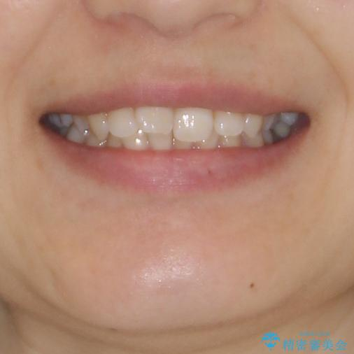 奥歯の倒れた歯を改善 インビザラインでの矯正治療の治療前(顔貌)