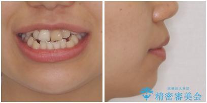 八重歯の抜歯矯正 費用を抑えた矯正装置の治療前(顔貌)