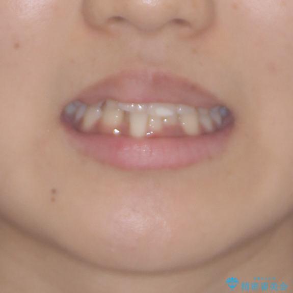 短期間での歯列矯正 ワイヤー矯正であっという間にの治療前(顔貌)