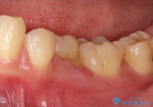 奥歯が痛い。乳歯を抜歯し、ブリッジによる咬合回復。の治療前