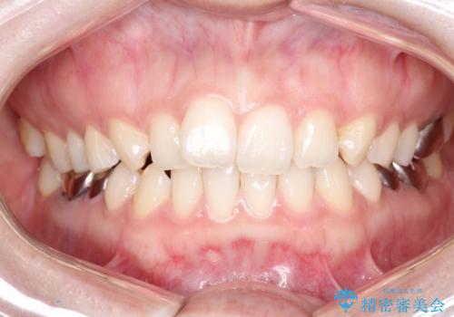 【メタルフリー】銀歯を白くしたい。オールセラミッククラウン。の症例 治療前