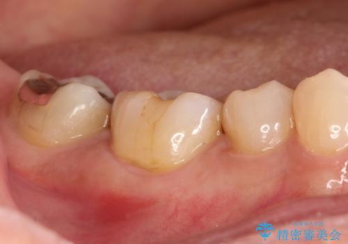 奥歯が痛い。精密根管治療〜オールセラミッククラウンの治療前