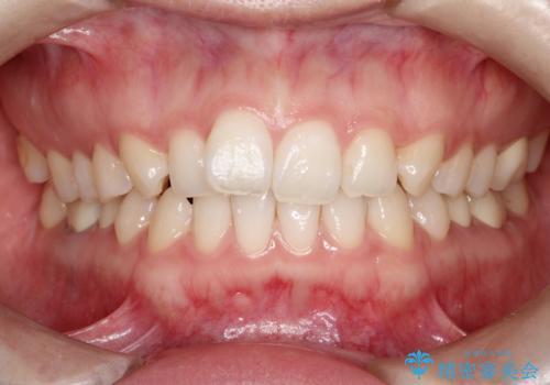 【メタルフリー】銀歯を白くしたい。オールセラミッククラウン。の症例 治療後