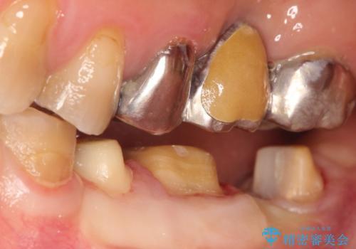 【ヘミセクション】なんとか残したい、割れた奥歯。の治療中