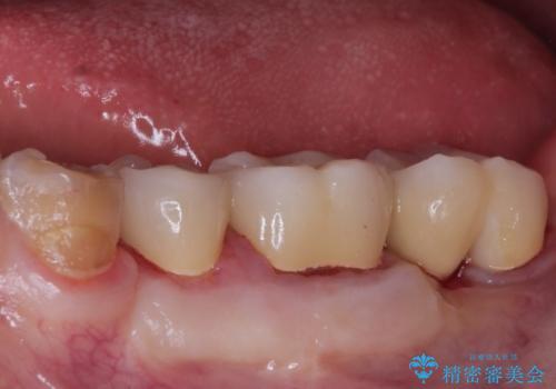 【ヘミセクション】なんとか残したい、割れた奥歯。の治療後