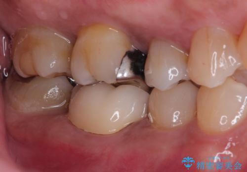 奥歯が痛い。精密根管治療〜オールセラミッククラウンの治療後