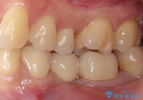 奥歯が痛い。乳歯を抜歯し、ブリッジによる咬合回復。の治療後
