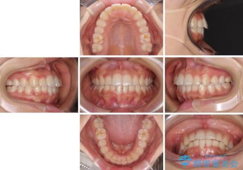 短期間での歯列矯正 ワイヤー矯正であっという間にの治療後