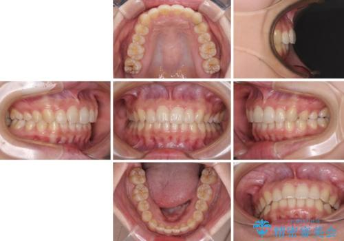 奥歯の倒れた歯を改善 インビザラインでの矯正治療の治療後