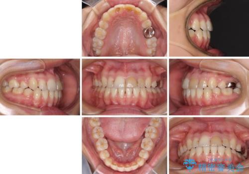 八重歯の抜歯矯正 費用を抑えた矯正装置の治療後