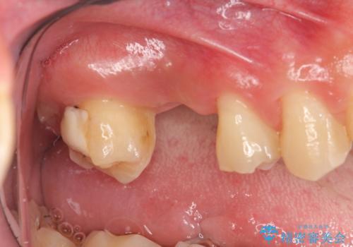 [インプラント補綴]  上顎洞底の再建に伴うサイナスフロアエレベーションの治療前