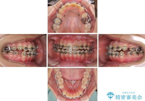 八重歯の抜歯矯正 費用を抑えた矯正装置の治療中