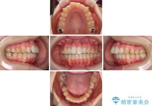インプラント治療とインビザライン矯正治療 総合歯科治療の治療中