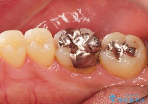 [セラミック治療]  目立つ銀歯を白く①の治療前