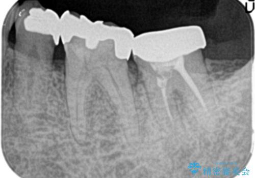 他院で治療しても治らない。奥歯の治療。の治療前