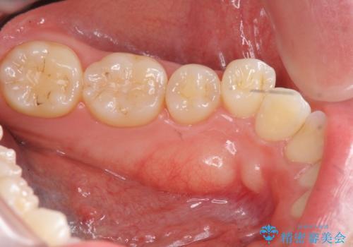 [下顎骨隆起切除] ベロのスペースが狭く話しづらいの治療前