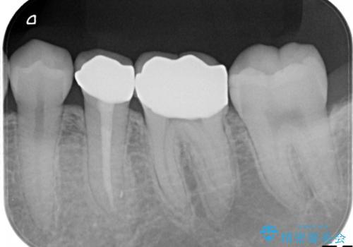 【メタルフリー】銀歯を白くしたい。オールセラミッククラウン。の治療前
