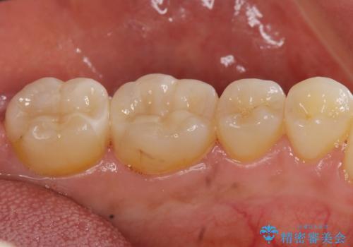 [セラミック治療]  目立つ銀歯を白く②の治療後