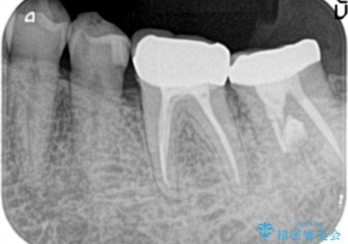 他院で治療しても治らない。奥歯の治療。の治療後