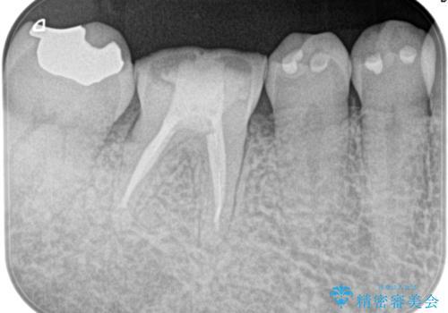 奥歯が痛い。精密根管治療〜オールセラミッククラウンの症例 治療後