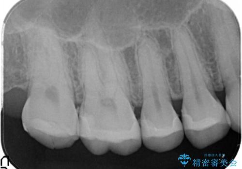 【メタルフリー】銀歯を白くしたい。オールセラミッククラウン。の治療後