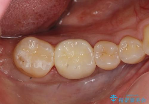 [セラミック治療]  目立つ銀歯を白く①の治療後