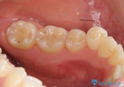 [下顎骨隆起切除] ベロのスペースが狭く話しづらいの治療後