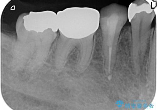 PGA(ゴールド)インレー 甘いものがしみる歯の治療の治療前