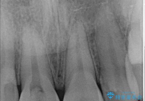 オールセラミッククラウン 痛みの引かない歯の治療の治療前