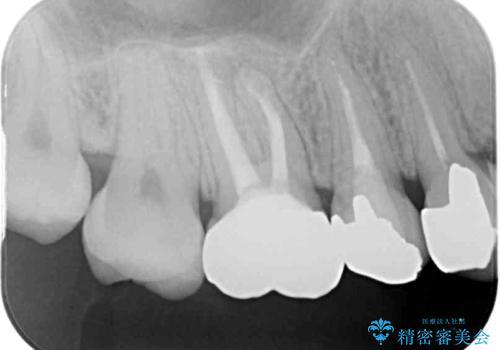 結婚式前に目立つ銀歯をセラミックにの治療後
