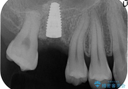 [インプラント補綴]  上顎洞底の再建に伴うサイナスフロアエレベーションの治療中