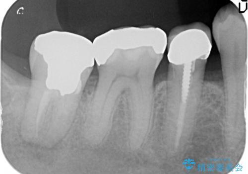 [歯周病再生治療]  根尖に至る骨欠損の改善の治療前